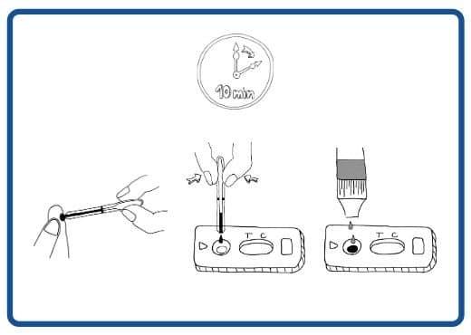 Patris Health - Illustration of a syphilis testing procedure