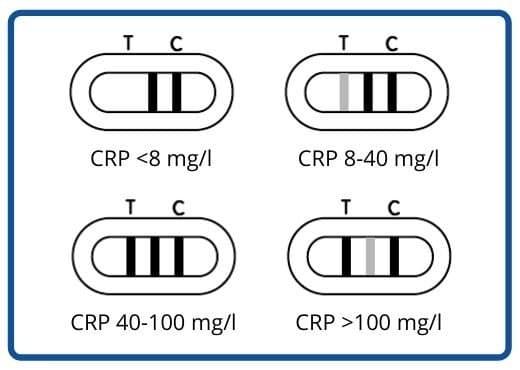 Patris Health - Possible results of a semi-quantitative CRP Home Test